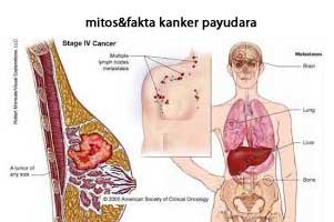 gambar bagian payudara