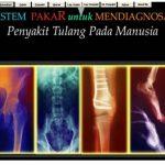 Jurnal TI ~ Penerapan Metode Backward Chaining pada Sistem Pakar Diagnosa Penyakit Tulang Manusia
