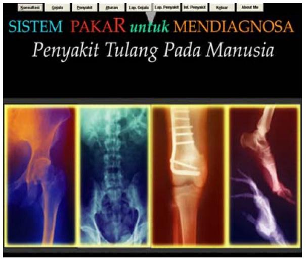 contoh form tampilan sistem pakar tulang
